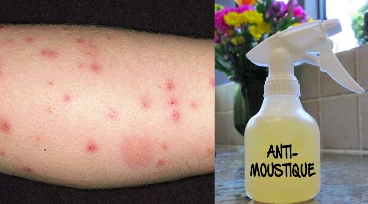 Vous pouvez fabriquer un répulsif avec du citron pour éliminer tous les moustiques de votre maison